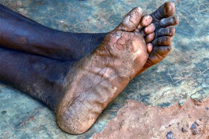 callosed-feet